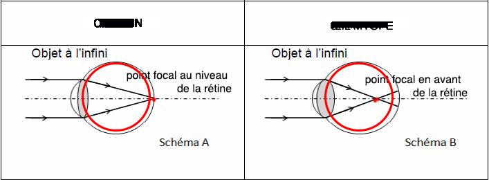 8a8733776ecb9e Ce défaut peut être corrigé par le port du lunettes DIVERGENTES adaptées à  chaque patient myope et qui replacent pour celui-ci le point focal au  niveau de ...
