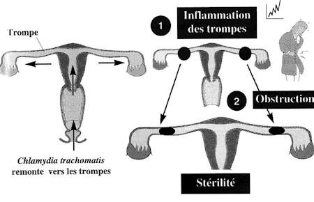 chlamydia sterilite